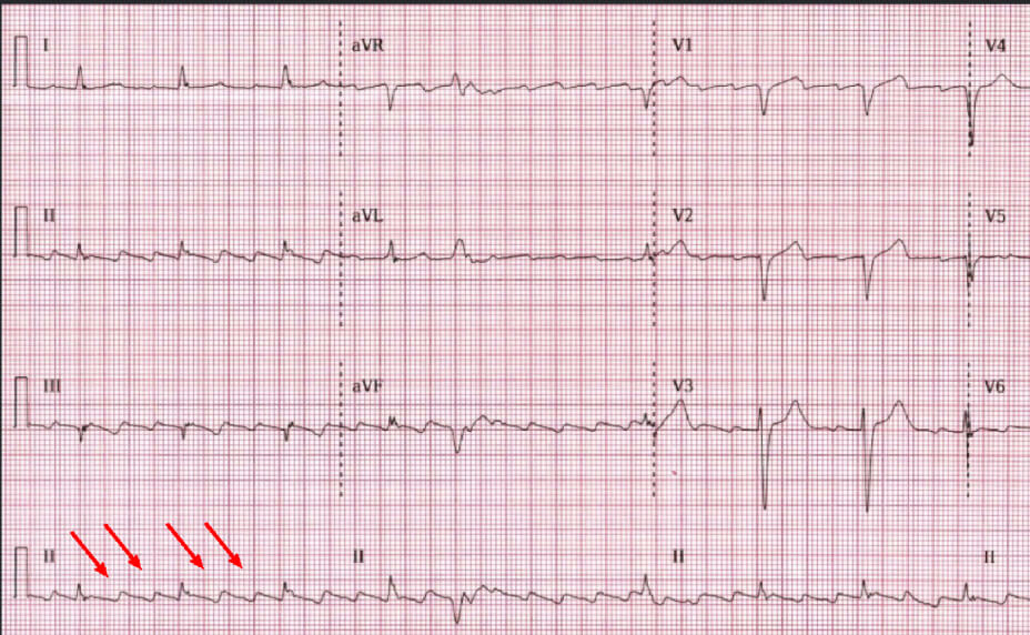 Atrial Flutter Electrocardiography results photo