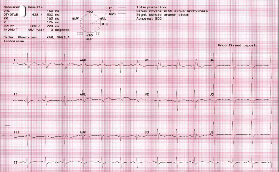 Right Bundle Branch Block Electrocardiography results photo