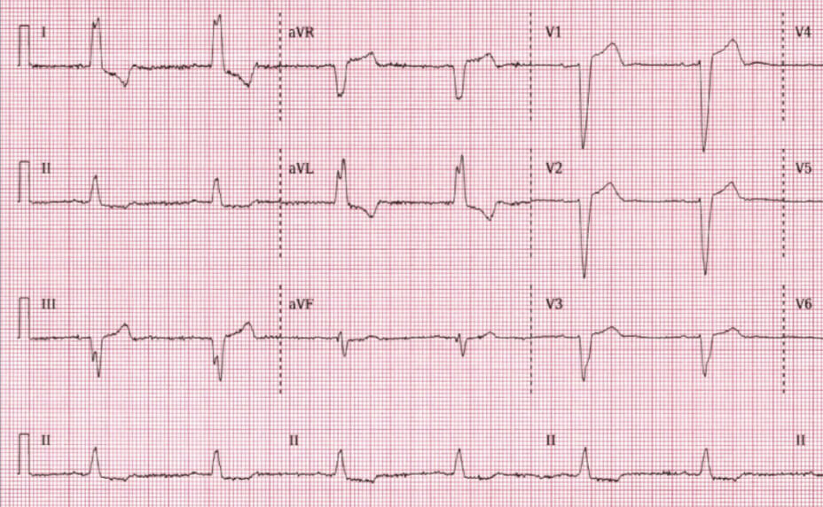 Left Bundle Branch Block Electrocardiography results photo