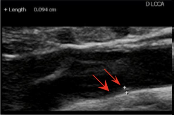 Left Carotid Artery photo with two red arrows