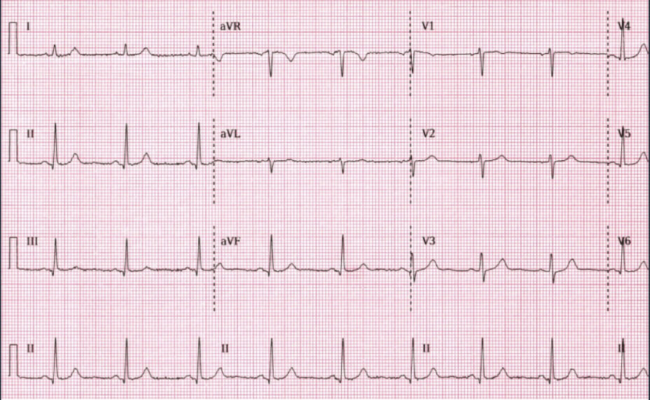 Normal Electrocardiography results photo