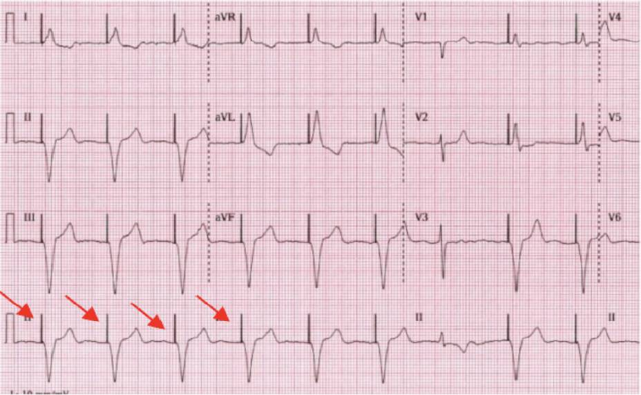 Permanent Pacemaker Electrocardiography results photo