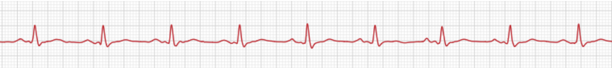 Electrocardiography results after medication, photo