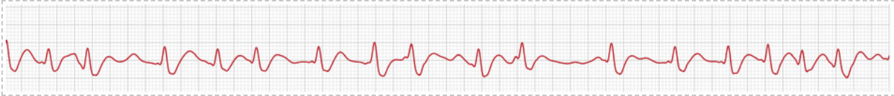 Example of abnormal rhythm, photo
