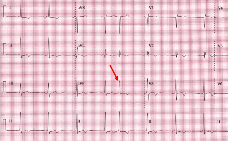 Left Ventricular hypertrophy and premature atrial beat Electrocardiography results photo